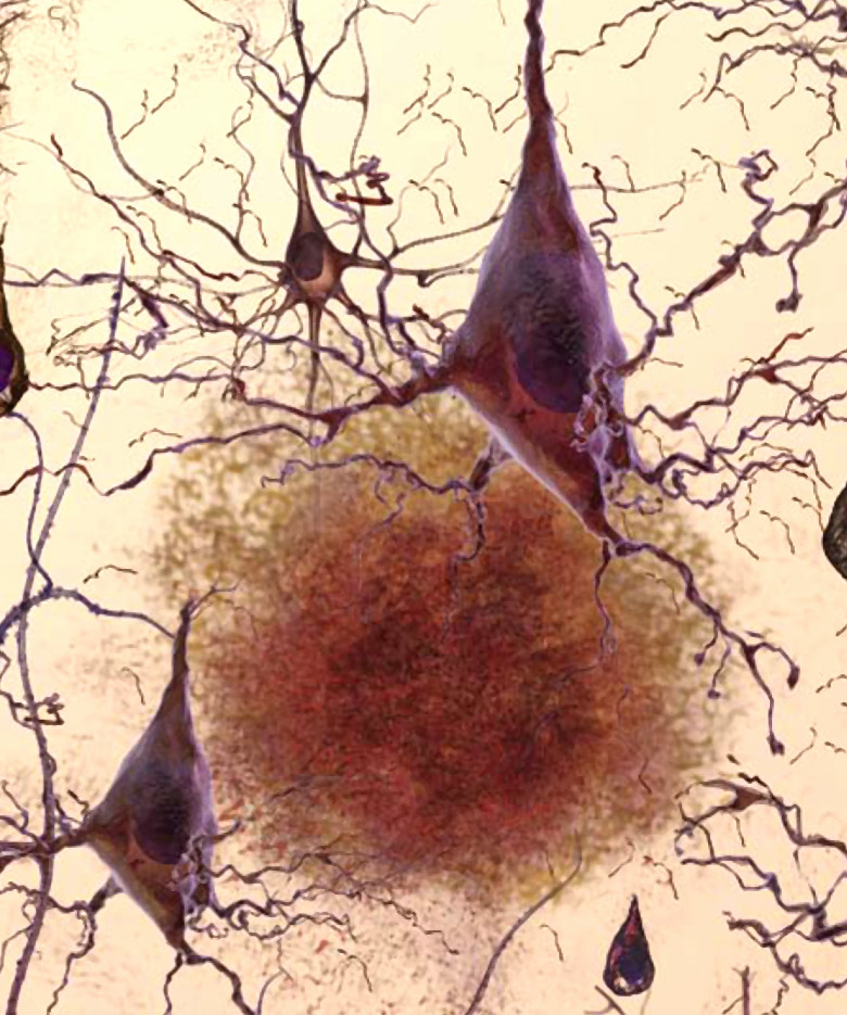 Alzheimer's disease neurons